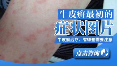 红皮型银屑病的症状是什么